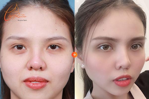 Sau cắt mí iLid, đôi mắt trở nên tươi trẻ, năng động hơn.
