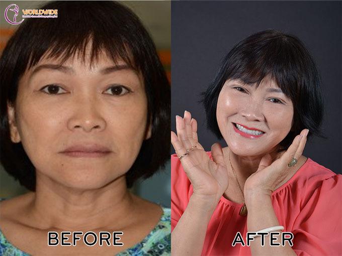 Cô Hoa (TP HCM) trẻ lại nhiều tuổi nhờ làm hai hàm với giải pháp All-on-4.