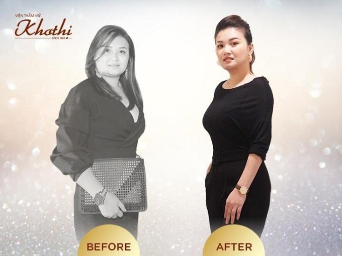 Giảm cân toàn thân Miko Diet, không hút mỡ, không ăn kiêng.