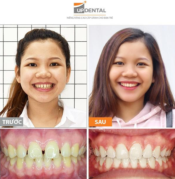 Để hàm răng sau khi niềng đẹp và thực hiện tốt các chức năng, bạn cần lựa chọn địa chỉ thăm khám tin cậy