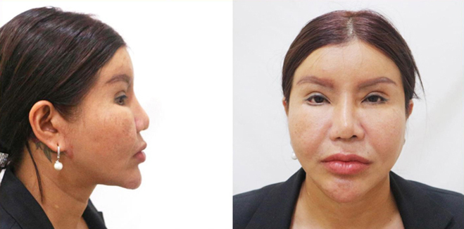 Tình trạng mũi của chị Yến khi đến gặp bác sĩ Nguyễn Tiến Huy.