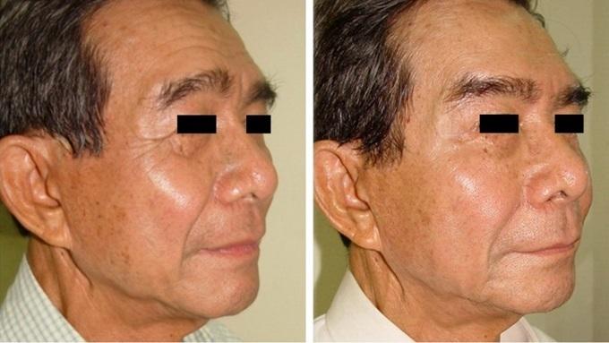 Gương mặt trông trẻ hơn sau khi trẻ hóa da bằng thẩm mỹ nội khoa.