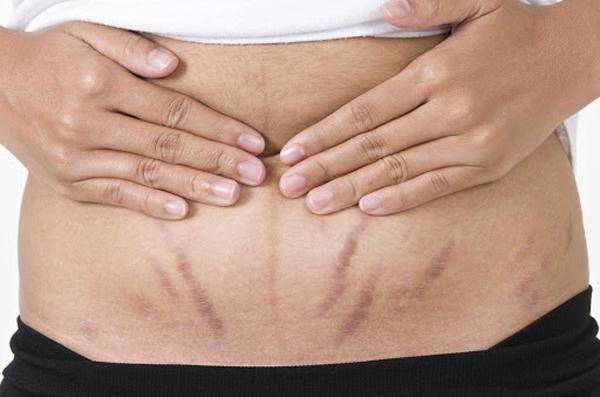 Rạn da là tình trạng thường gặp ở các phụ nữ mang bầu.