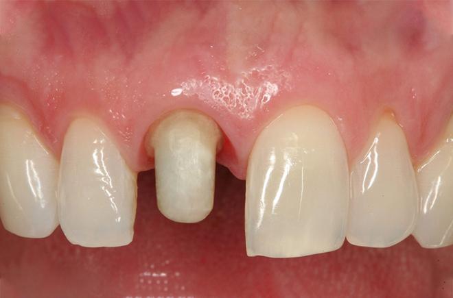 Mài răng quá nhỏ sẽ làm tủy răng yếu đi.