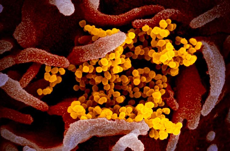 Hình ảnh nCoV (màu vàng) trên kính hiển vi. Ảnh:EPA-EFE