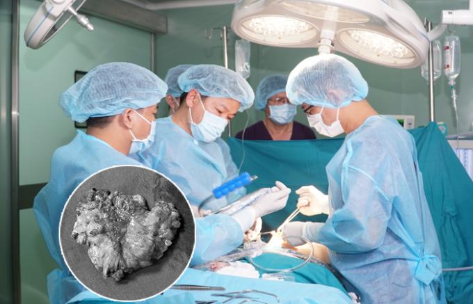 Các bác sĩ tái phẫu thuật ngực cho bệnh nhân ngay khi nhận định tình trạng hoại tử.