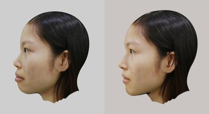 Mô phỏng thay đổi mô mềm nhìn một bên sau phẫu thuật.
