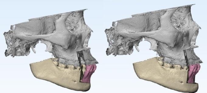 Phẫu thuật mô phỏng hô hai hàm.