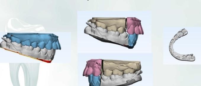 Phẫu thuật mẫu hàm 3D tái lập khớp cắn mới.
