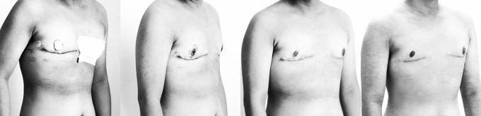 Quá trình hồi phục được xem là hoàn hảo sau 2 năm phẫu thuật của một người chuyển giới. Ảnh: T.A