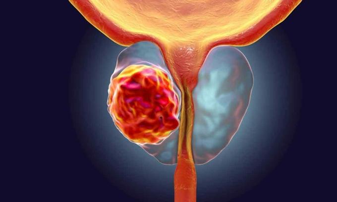 5 loại ung thư phổ biến ở đàn ông