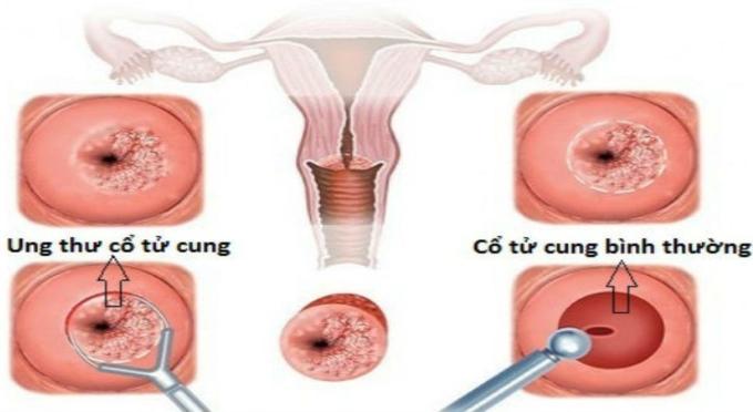 Ung thư cổ tử cung vẫn có thể sinh con