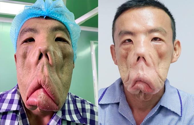 Gương mặt bệnh nhân thay đổi trong giai đoạn điều trị đầu tại Bệnh viện JW Hàn Quốc.