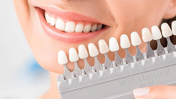 Răng sứ VITA 100 năm từ Đức