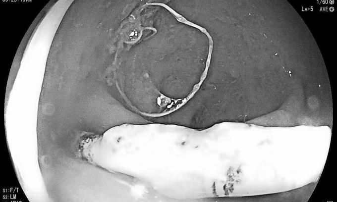 Vòng tránh thai đâm thủng trực tràng