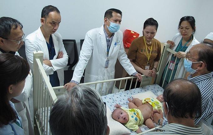 Các y bác sĩ hội chẩn nhiều lần để chuẩn bị cho cuộc mổ tách. Ảnh do bệnh viện cung cấp.