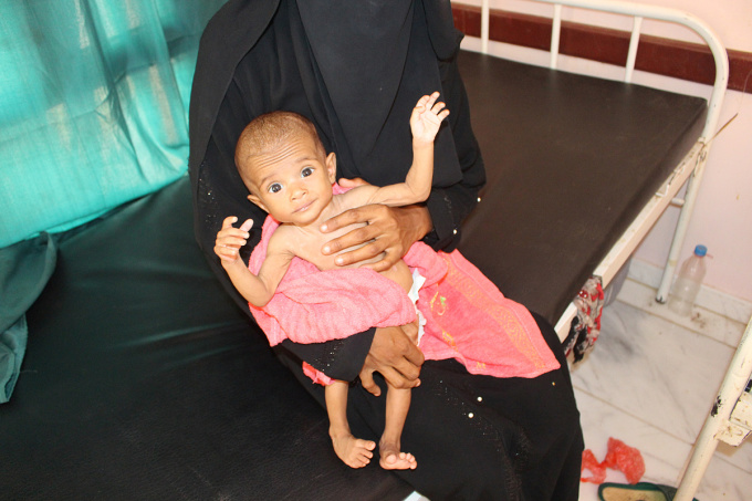 Một trẻ bị suy dinh dưỡng tại một bệnh viện quận Aslam, thành phố Hajjah, Yemen, ngày 18/6. Ảnh: Reuters
