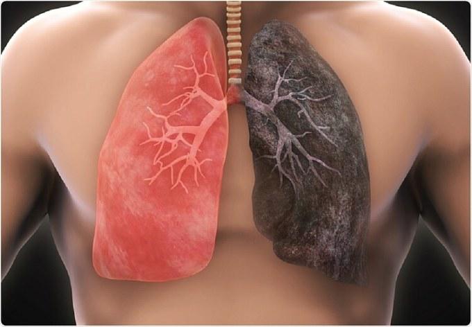 Lá phổi đen kịt của người hút thuốc lá. Ảnh: Shutterstock