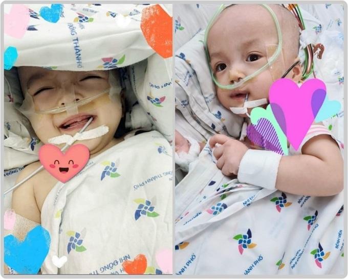 Trúc Nhi (bên trái) và Diệu Nhi tỉnh táo, biết cười đùa, giận dỗi khi ba mẹ tới thăm. Ảnh Bệnh viện cung cấp