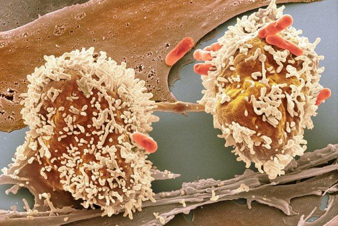 Ảnh hiển vi của một tế bào ung thư đại tràng đang phân chia. Ảnh: Science
