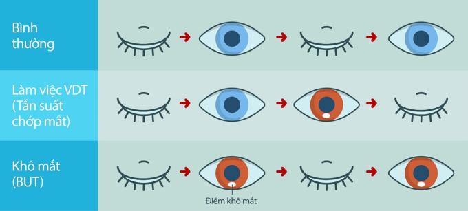 Cơ chế làm việc của mắt khi bình thường, làm việc trong môi trường văn phòng và khi bị khô mắt.