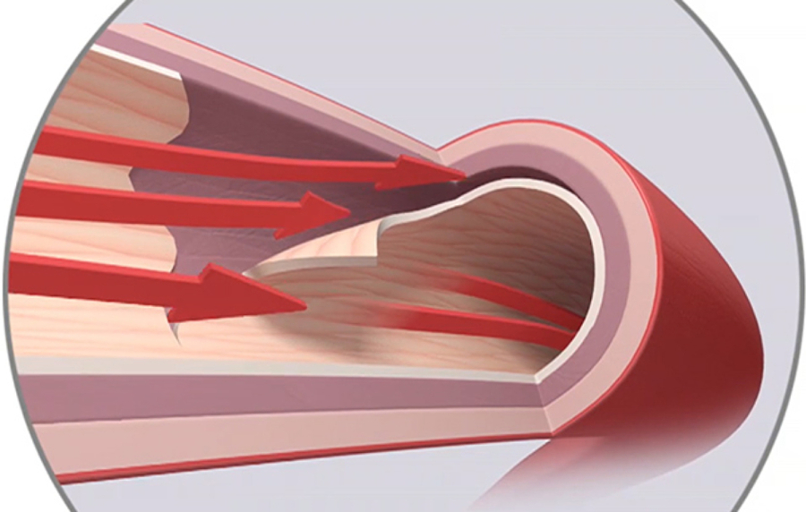 Nhồi máu cơ tim sau sinh do bệnh hiếm gặp