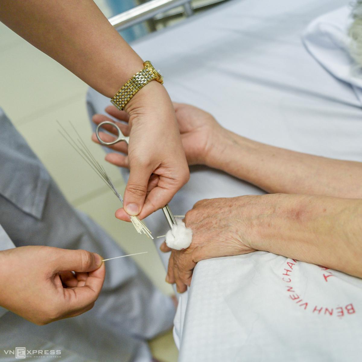 Châm kim xuyên huyệt chữa liệt nửa người