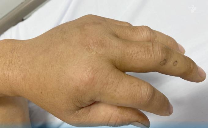 Hai vết răng nanh rắn nhỏ xíu trên tay trái người bệnh. Ảnh: Bệnh viện cung cấp.
