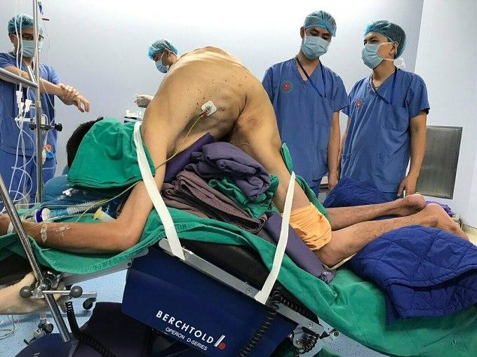 Các bác sĩ tự chế bàn mổ để phẫu thuật cho bệnh nhân gù. Ảnh: Bệnh viện cung cấp.