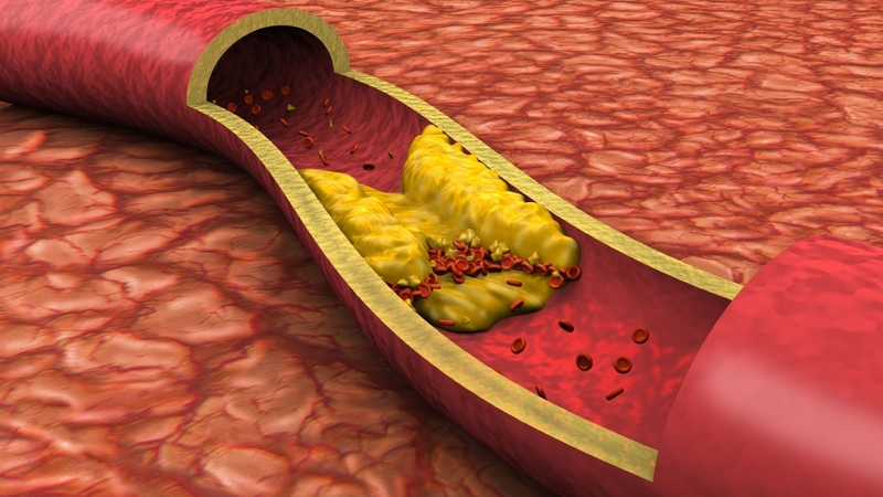 Thừa cholesterol nguy hiểm thế nào?