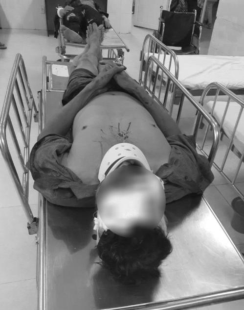 Hai bệnh nhân bị thương do bão Molave cấp cứu tại Bệnh viện Đa khoa tỉnh Bình Định ngày 28/10. Ảnh: Bác sĩ cung cấp.