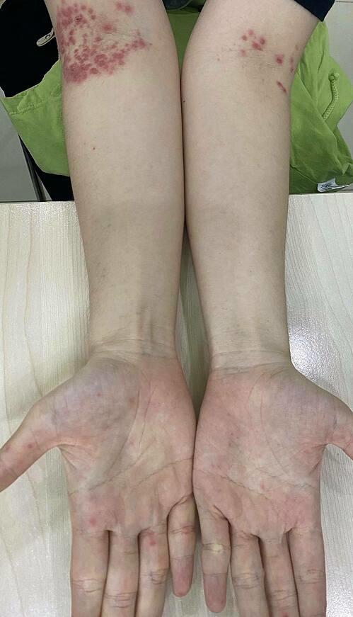 [Caption]Các tổn thương do tay chân miệng của bệnh nhân xuất hiện cả ở khoeo tay, nếp gấp da nên rất dễ nhầm với bệnh chàm.