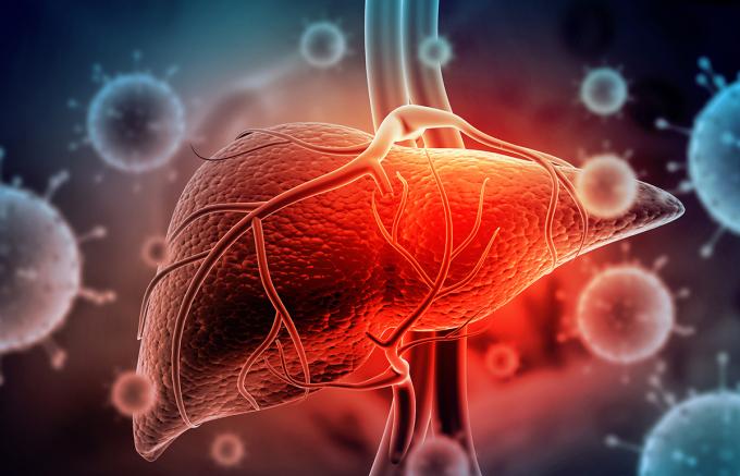 Virus viêm gan là nguyên nhân hàng đầu gây xơ gan và ung thư gan. Ảnh: Shutterstock.
