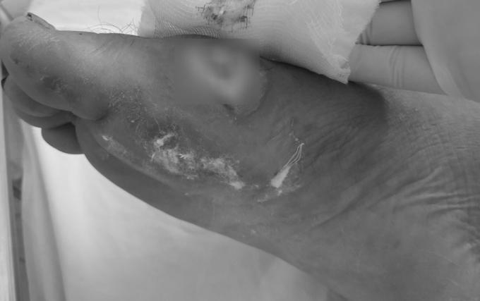 Bàn chân một bệnh nhân bị vi khuẩn Burkholderia pseudomallei làm hoại tử. Ảnh: Bệnh viện cung cấp.