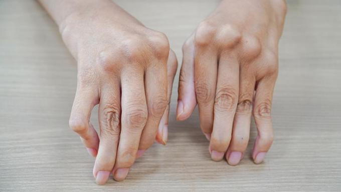ếu không được điều trị sớm và đúng cách, viêm khớp dạng thấp có thể gây tàn phế.