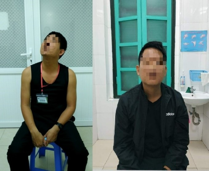 Bệnh nhân bị loạn trương lực cơ cổ trước và sau khi điều trị. Ảnh: Bệnh viện cung cấp.