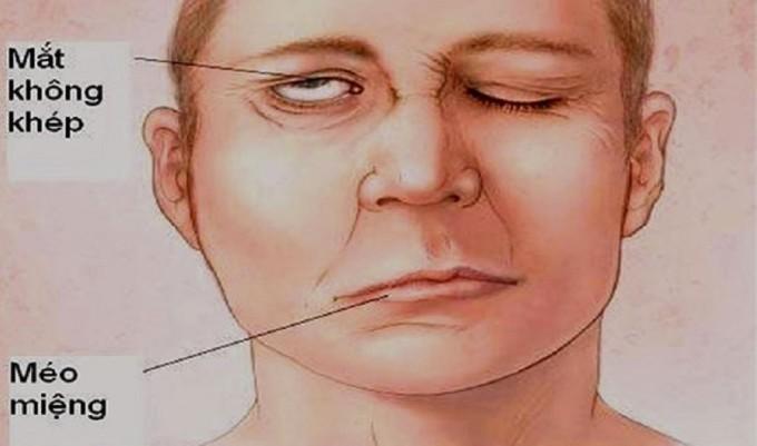 Hình ảnh của liệt dây thần kinh số 7 ngoại biên thường gặp. Ảnh: Bệnh viện cung cấp