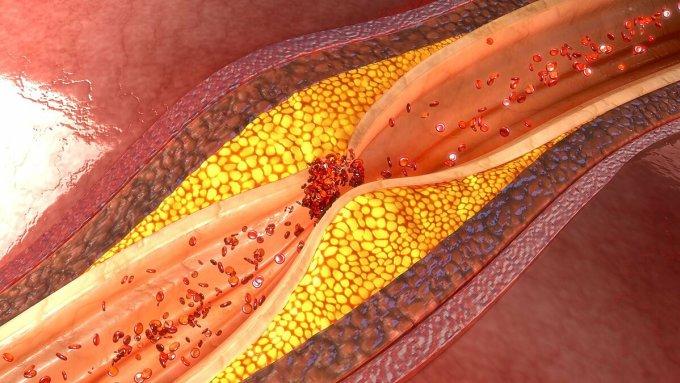 Xơ vữa động mạch cản trở lưu thông máu. Ảnh: istockphoto.