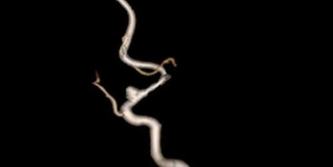 Hình ảnh túi phình mạch não do xuất huyết não là nguyên nhân dẫn đến đột quỵ. Ảnh: Bác sĩ cung cấp