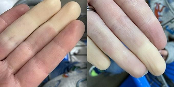 Hiện tượng thiếu máu khiến đầu ngón tay của Rachel Smith trở nên tái nhợt. Ảnh: Today.