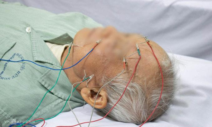 Cụ ông bị liệt mặt, méo miệng điều trị bằng phương pháp châm cứu. Ảnh: Chi Lê.