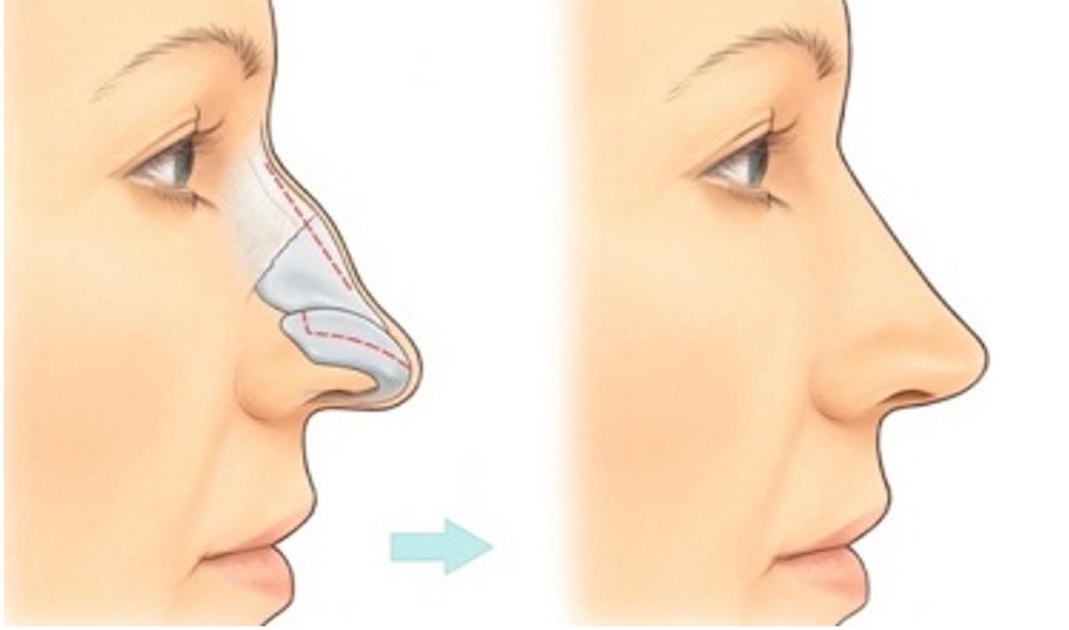 Nâng mũi như thế nào cho đẹp?
