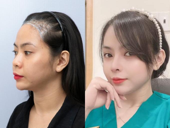 Hình ảnh thay đổi của một bạn nữ trước và sau khi cấy tóc tại New Hair. Ảnh: New Hair.