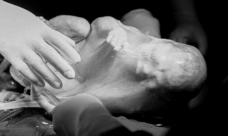 Một bé song sinh chào đời trong bọc ối