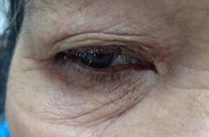 Mi mắt chứa đầy rận mu của bệnh nhân trước khi điều trị. Ảnh: Bệnh viện cung cấp.