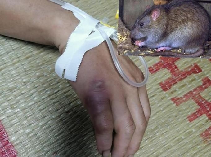 Vết chuột cắn trên tay bệnh nhân. Ảnh: Bệnh viện cung cấp