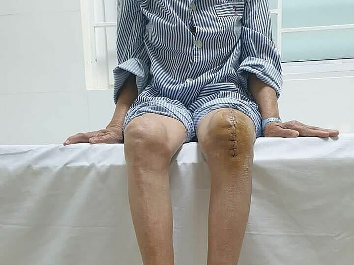 Người bệnh lao khớp gối đầu tiên được thay khớp nhân tạo