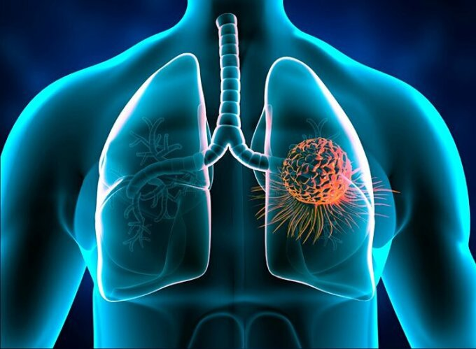 Ung thư phổi thường có triệu chứng không rõ ràng ở giai đoạn đầu. Ảnh: Shutter stock.