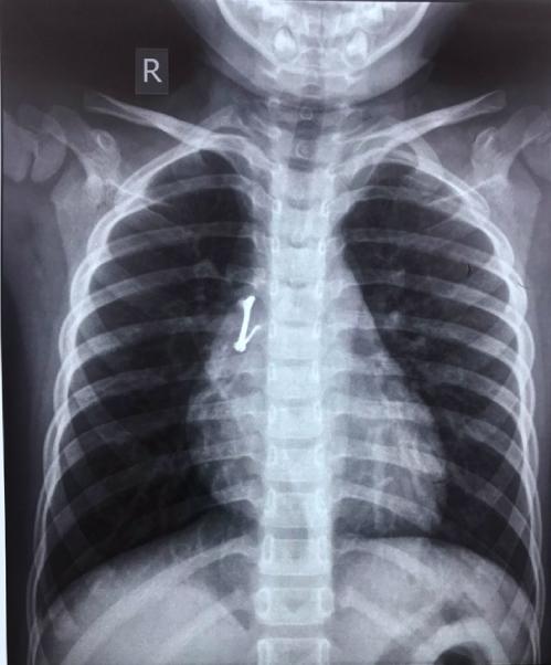 Vị trí chiếc khóa áo trong phổi bệnh nhân. Ảnh: Bác sĩ cung cấp.