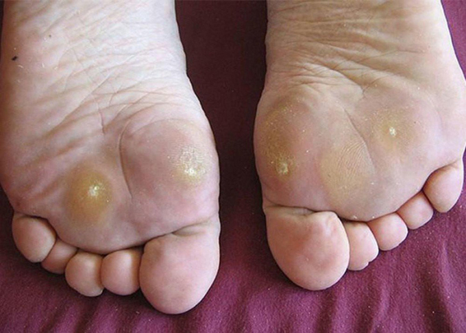 Ban chân bị chai ở nhiều điểm.